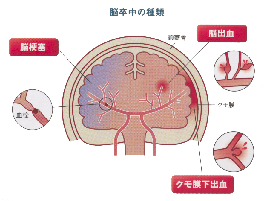 くも膜下(お酒) - クモ膜下出血水頭症